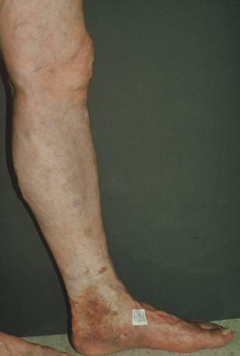 Great Saphenous Insufficiency Skin changes are seen along the medial aspect of the ankle The presence of skin changes is a