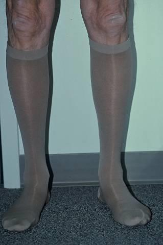 Elastic compression stockings Must be graduated Calf high generally sufficient Replace q 6