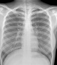 12 What diagnostic tests exist to detect latent tuberculosis infection and confirm active TB disease?