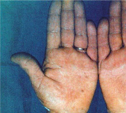 Serbian Journal of Dermatology and Venereology 2015; 7 (1): 5-14 M. Paravina and D. Ljubisavljević Malignant Acanthosis Nigricans Associated with Gastric Adenocarcinoma Figure 3.