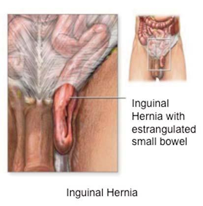 215 4 5 Figures 4-5. These images are used to explain the pathology of the inguinal hernia 6 7 Figures 6-7.